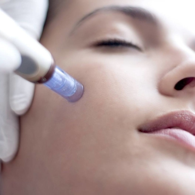 Formation Microneedling